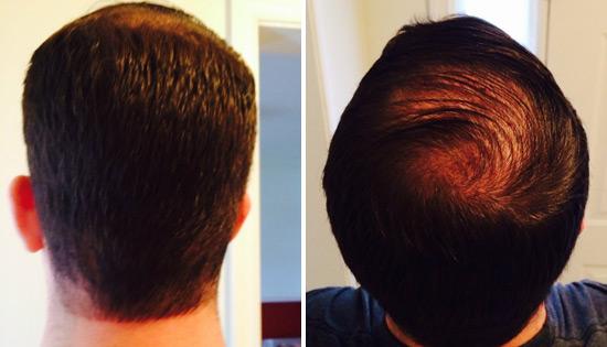 Miami Hair Loss Center