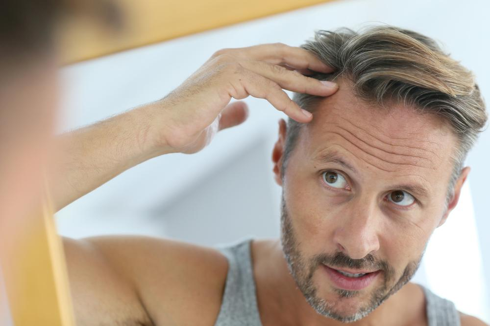 Hair Transplant Without Donor Hair